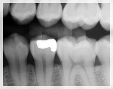 Xray image of a tooth with a filling.